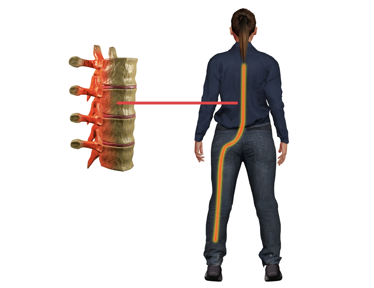 How to Get Relief from Sciatica Pain?